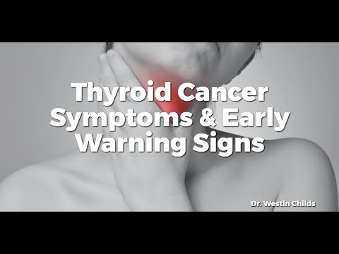 cancer uterin papilom