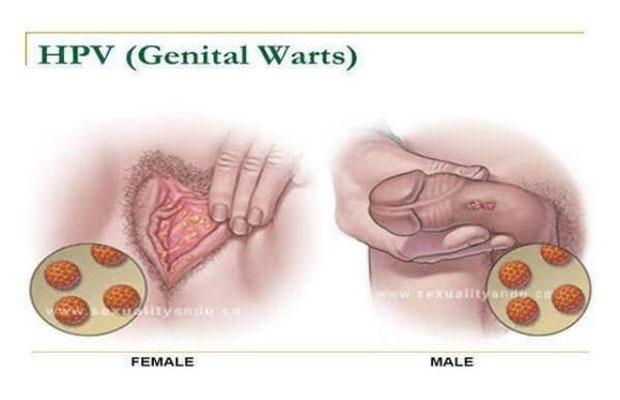 hpv wart symptoms)