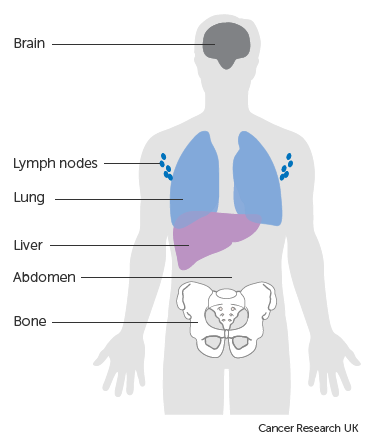 Cancer in abdominal muscle, Tumorile vezicale , Cancer in abdominal muscle