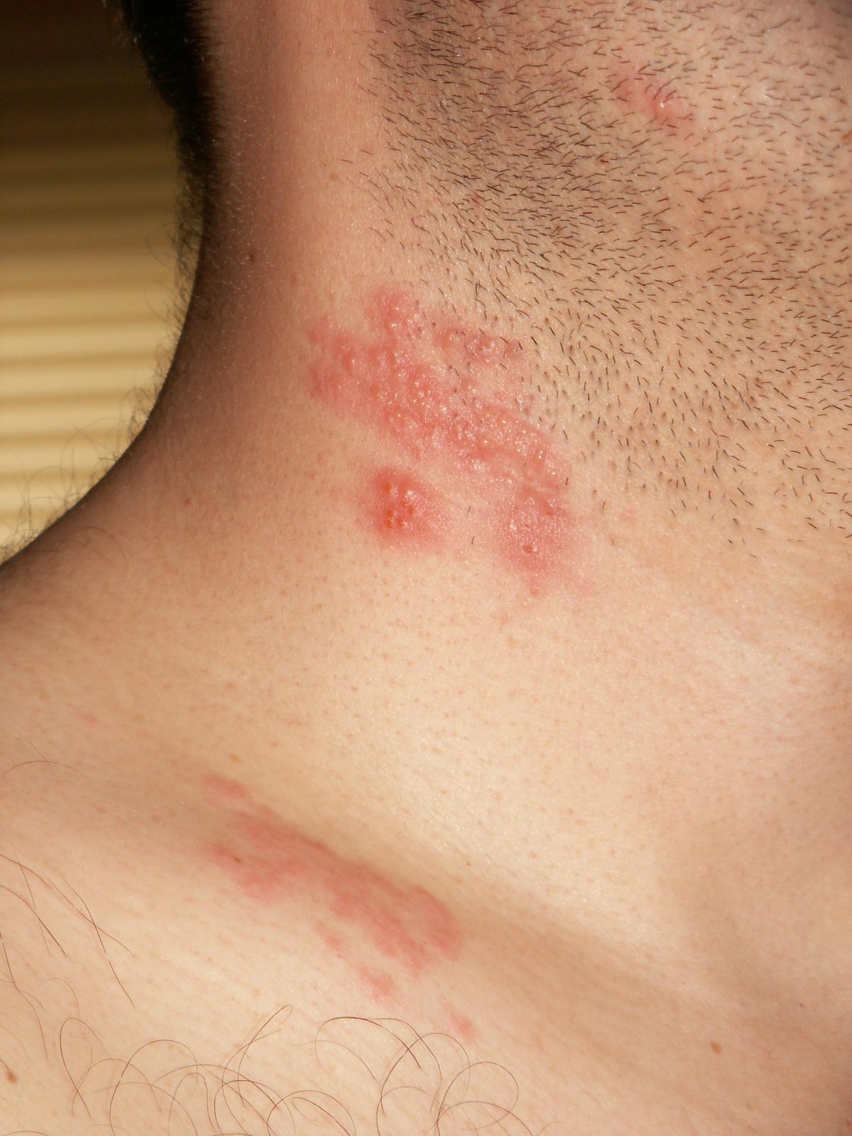 papilloma virus herpes zoster)
