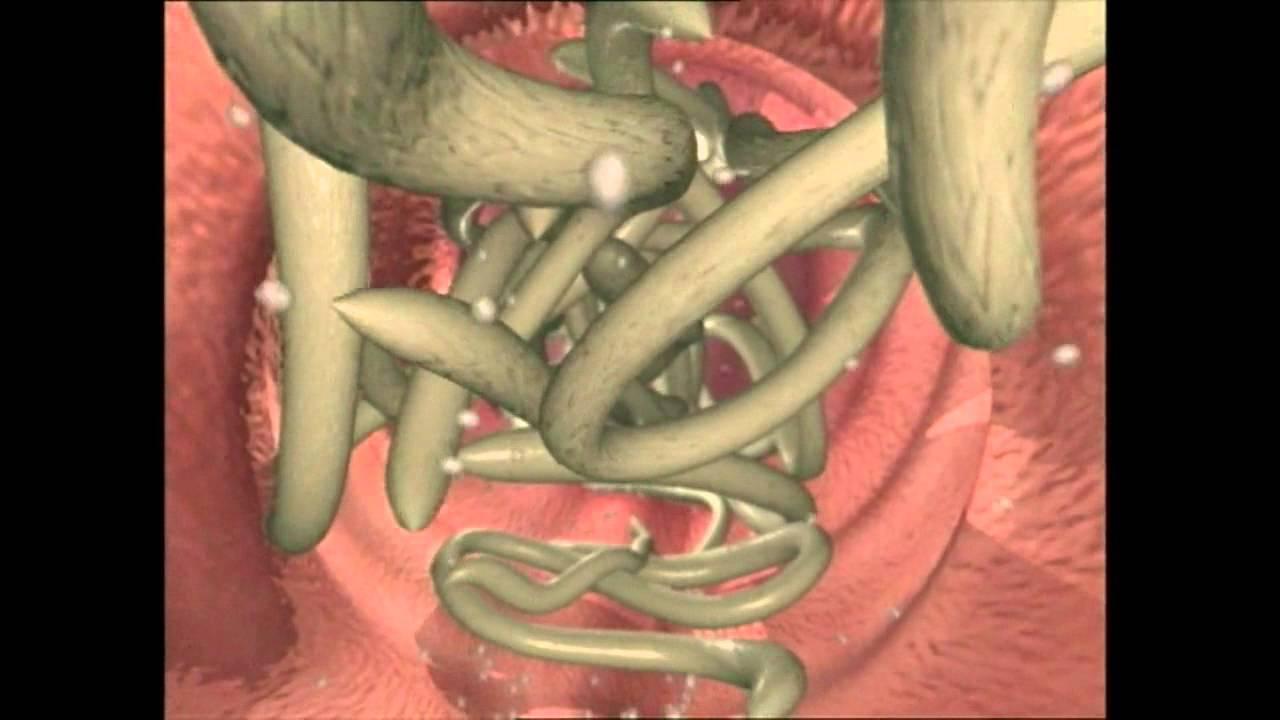 tratamentul viermilor infecțioși