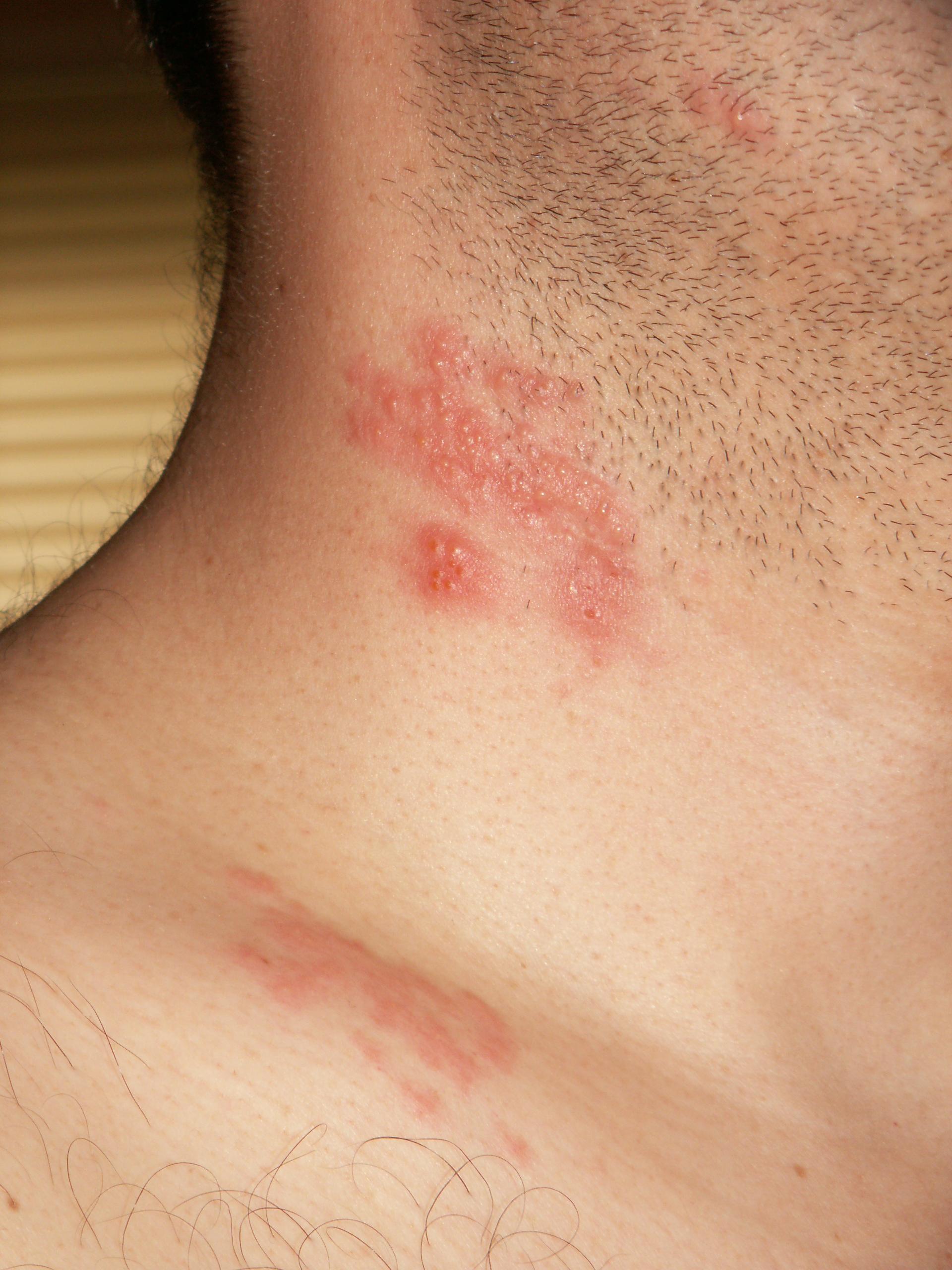 Can hpv virus cause nerve pain. Penyakit Infeksi Dalam Kehamilan