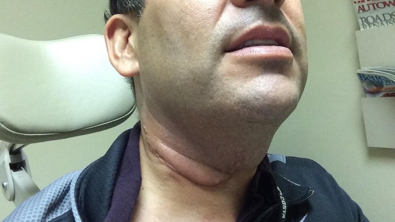 papillomavirus on neck