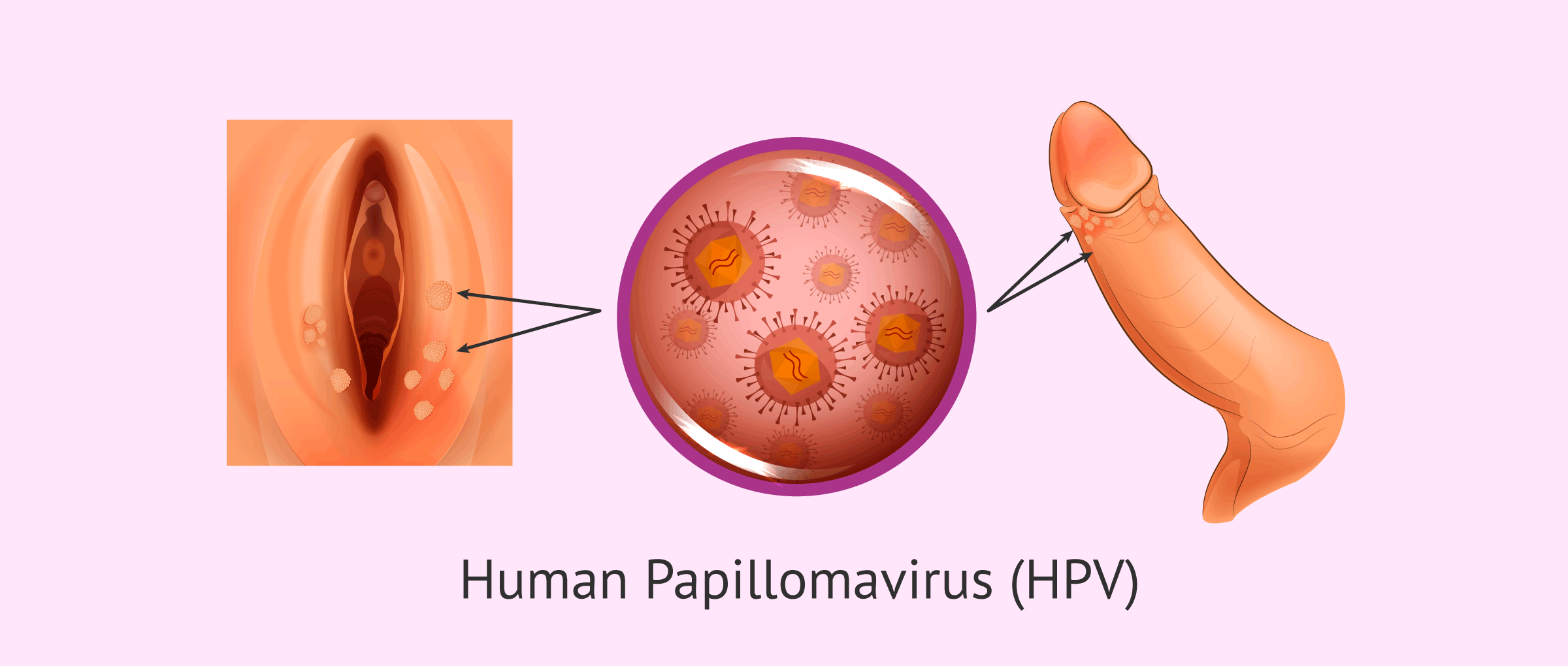 papillomaviruses and warts)