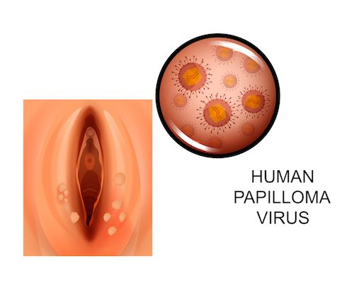 papillomavirus and genital herpes does high risk hpv mean cancer