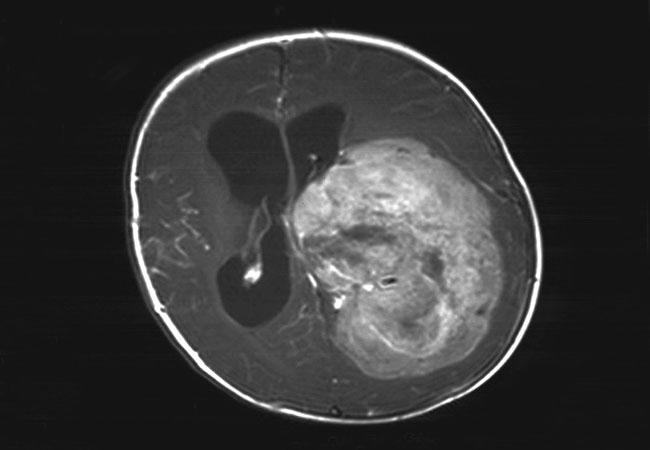 Benign choroid plexus papilloma, Vindecă paraziții în timpul sarcinii