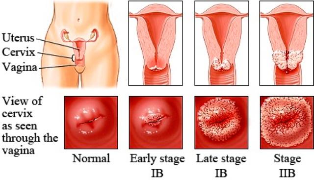 papillomavirus in females îndepărtarea verucilor genitale din locuri intime