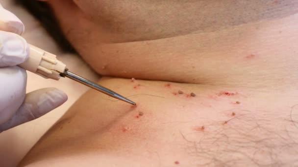 remove papillomas skin
