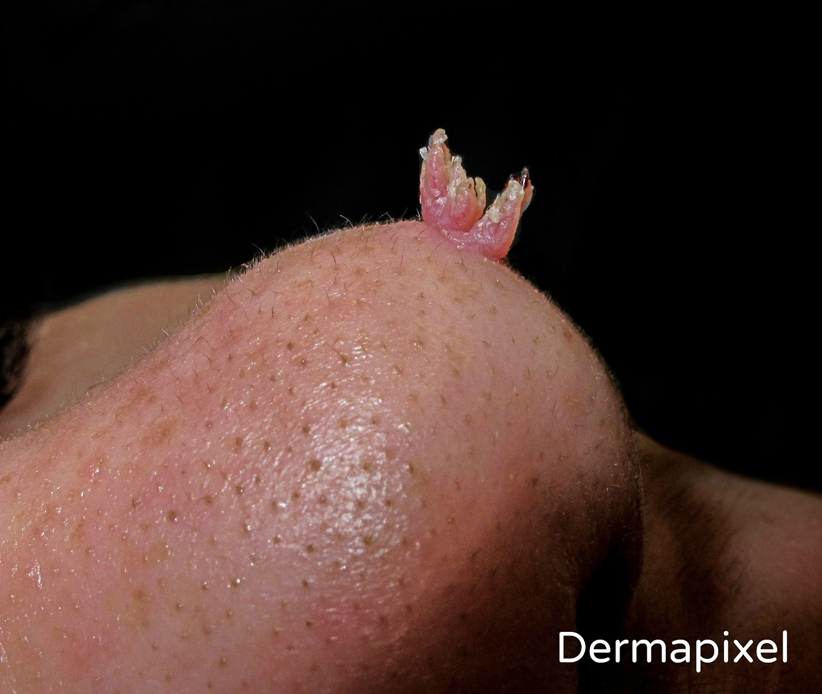 papiloma en la piel en ninos tenia bovină provoacă infecție