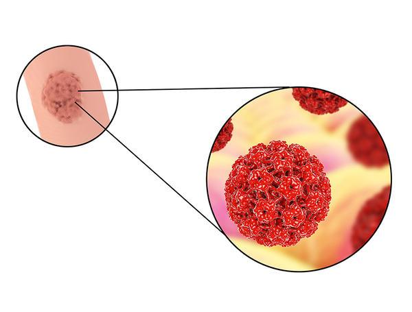 stadiul invaziv al puterniciloidozei)