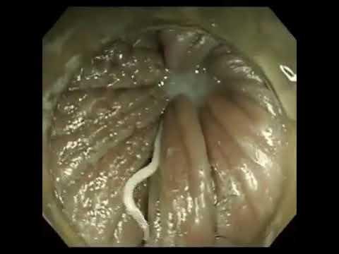 oxyures vermicularis traitement