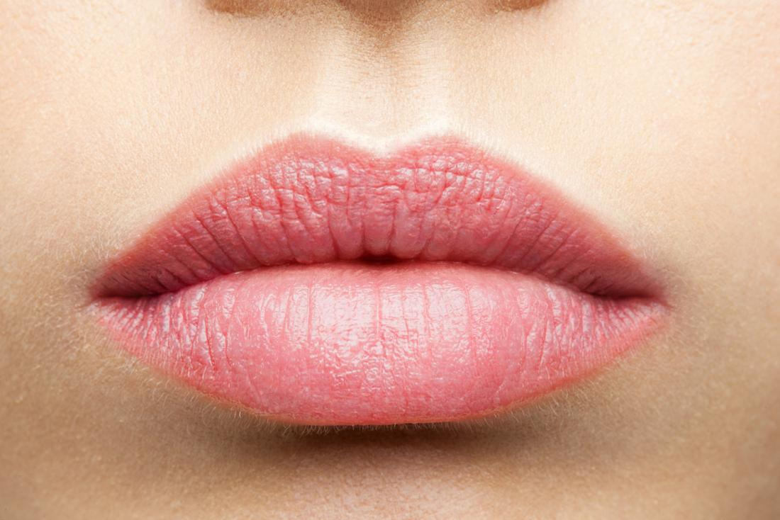hpv upper lip