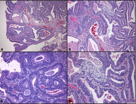 Colorectal cancer histology
