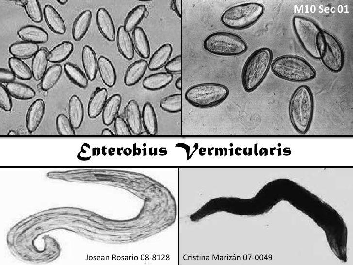 Enterobius vermicularis laboratory diagnosis, Diagnosis banding enterobiasis