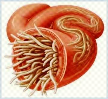 Tratamentul viermilor nematode umane