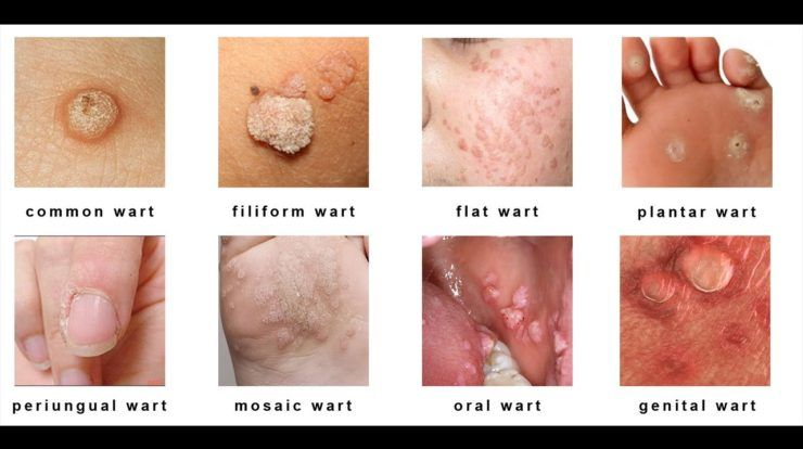 papillomavirus types of warts