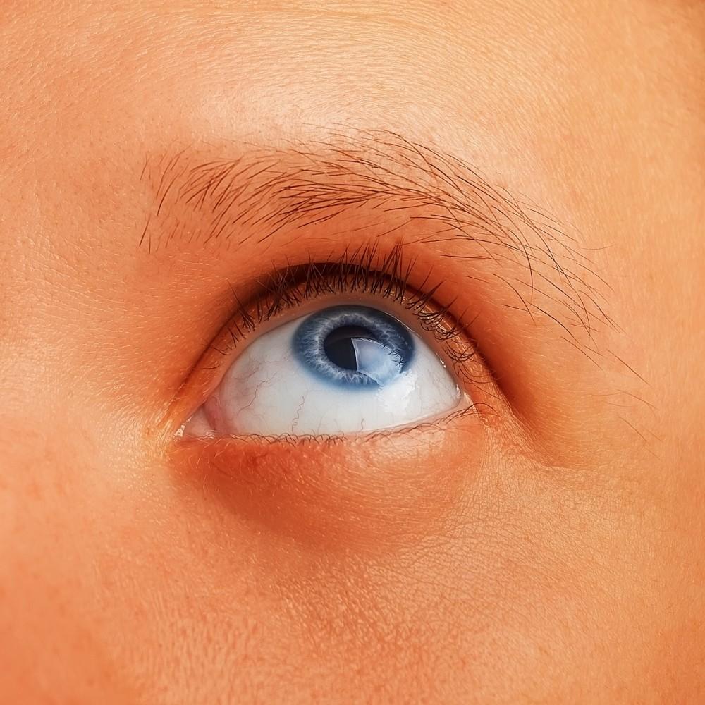 tratamentul papilomului în jurul ochilor