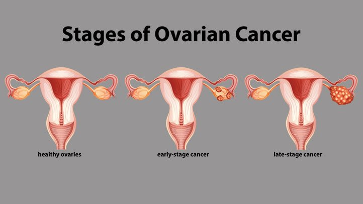 ovarian cancer quick death