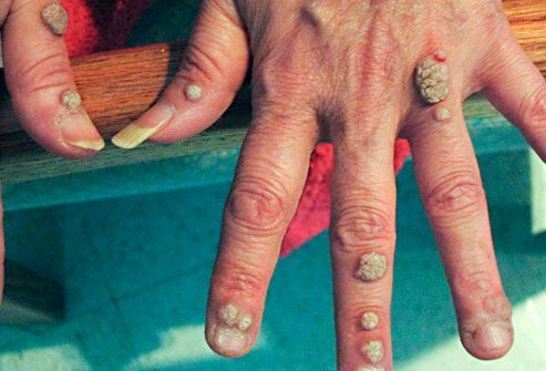 warts on hands called)