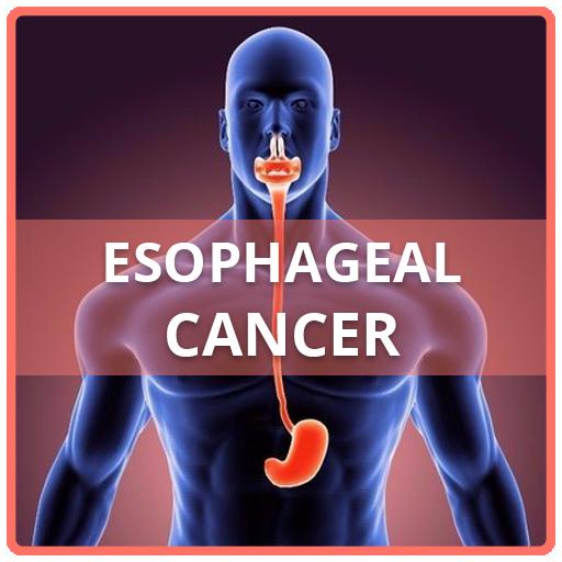 papilom esofag