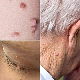 skin warts on face and neck)