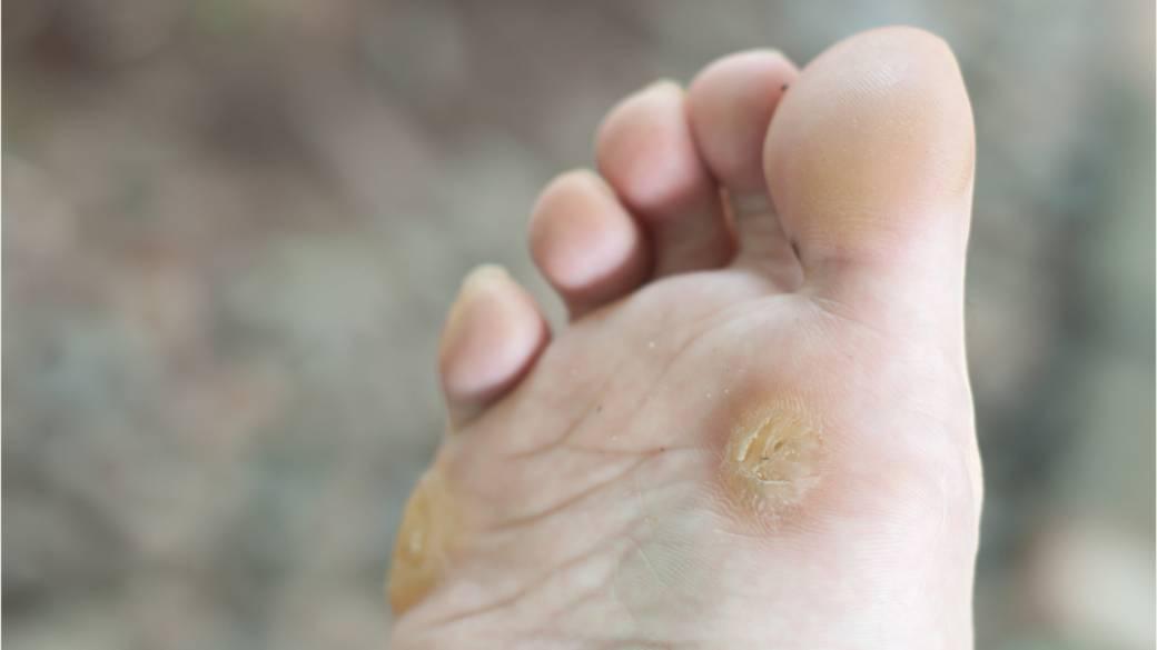 WART - Definiția și sinonimele wart în dicționarul Engleză, Warts on the hands and feet