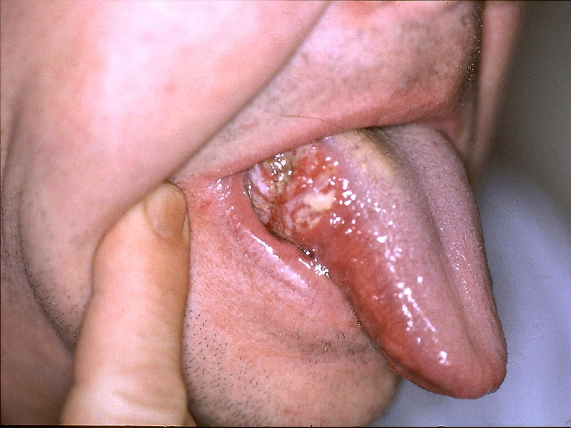 metastatic hpv throat cancer)