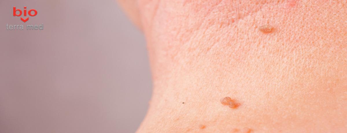 condiloame pe pielea unei alunițe