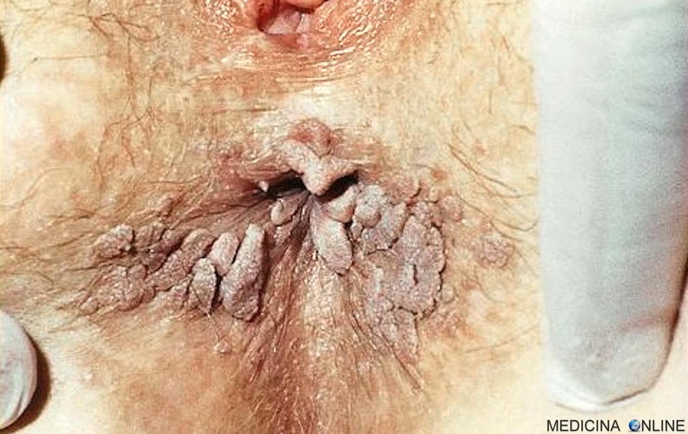 papilloma virus operazione)
