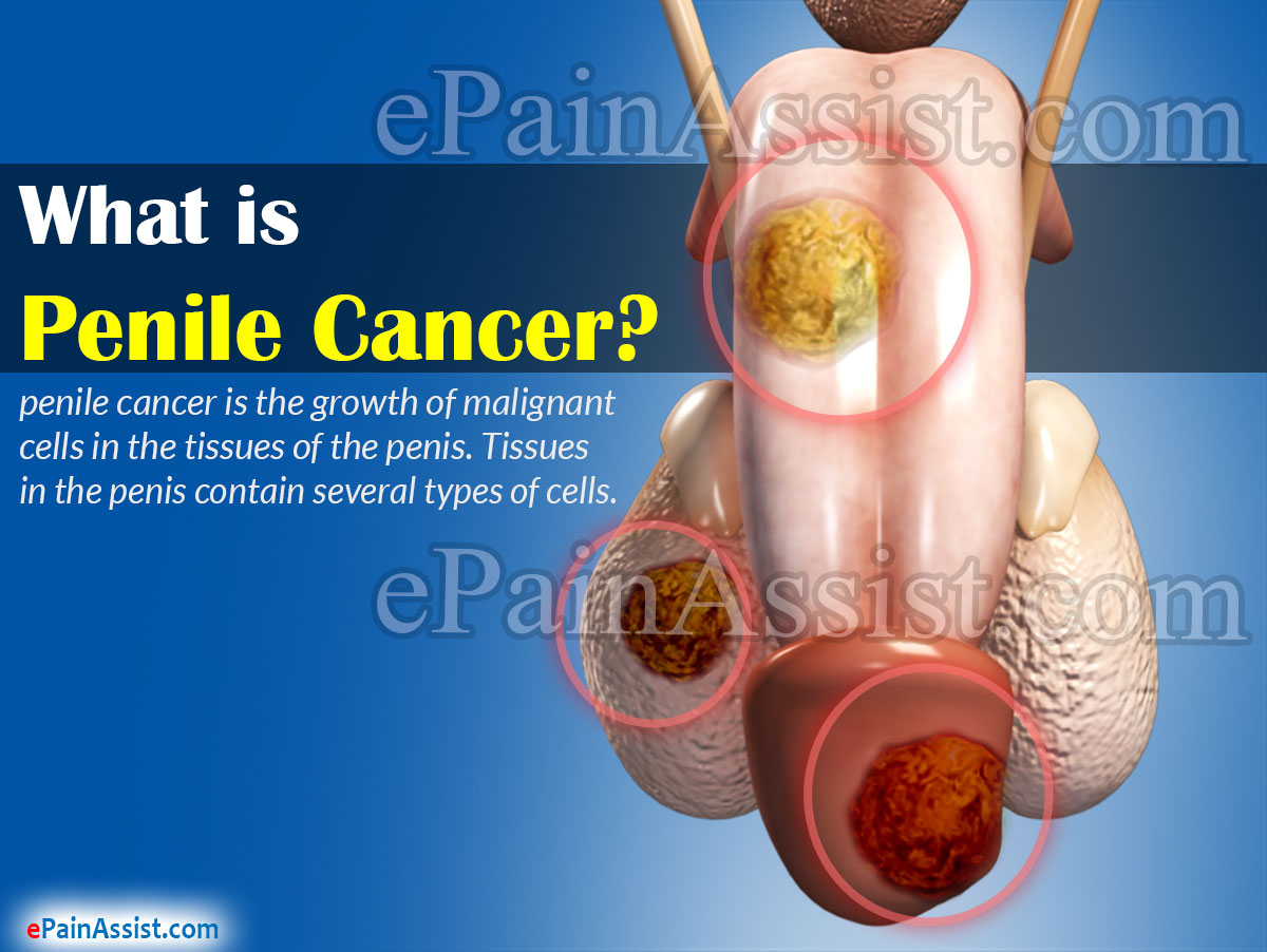 hpv related penile cancer