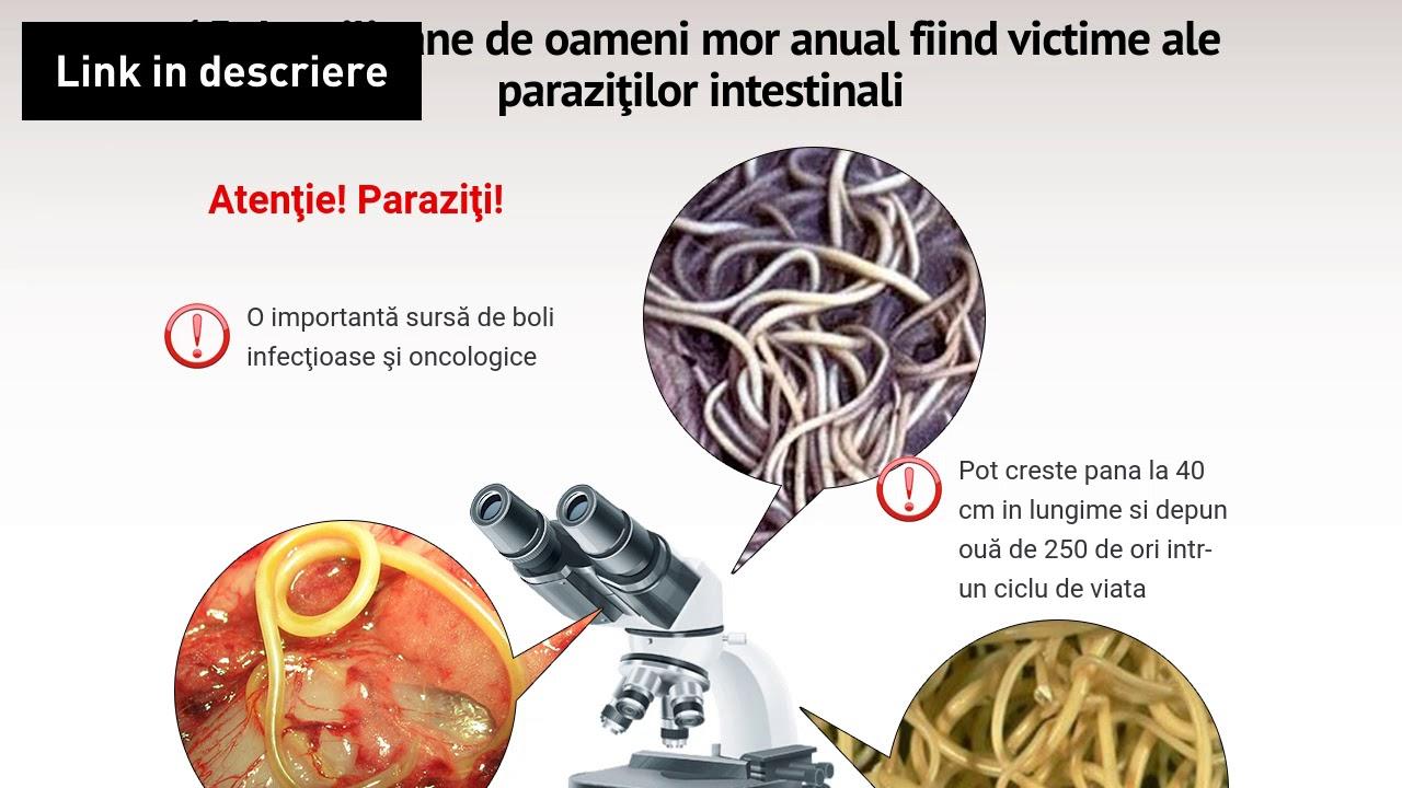 tratamentul paraziților gastrici la om