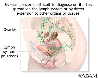 Ovarian cancer with ascites - Best alia images in | Medicine student, Nursing notes, Medicine notes