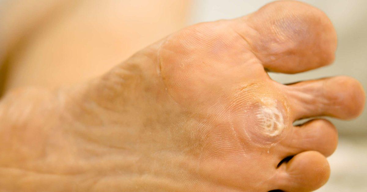 wart on foot getting bigger simptome ale unei femei