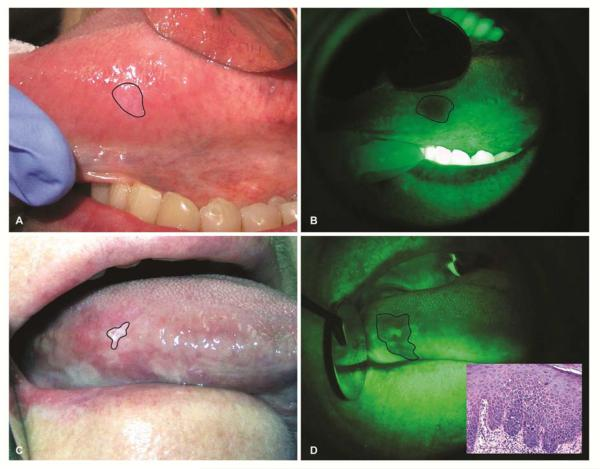 Papilloma mouth icd Orl 24 (3) by Versa Media - Issuu