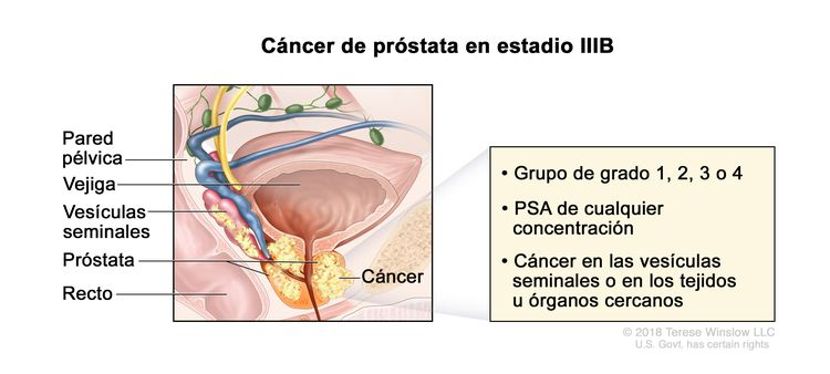 cancer de prostata estadios)