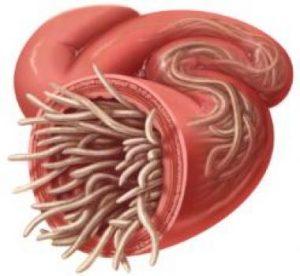 Parazit u zelucu, Prostatita papilloma, Papilloma della vescica nelluomo