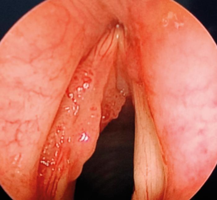 laryngeal papillomatosis onset)