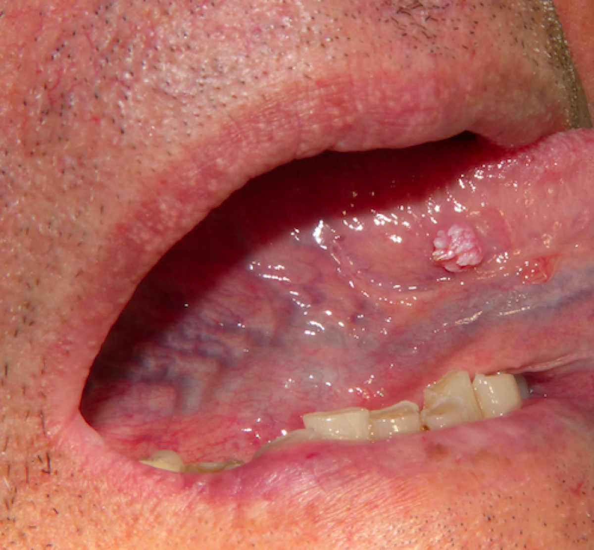 squamous papilloma back of tongue)