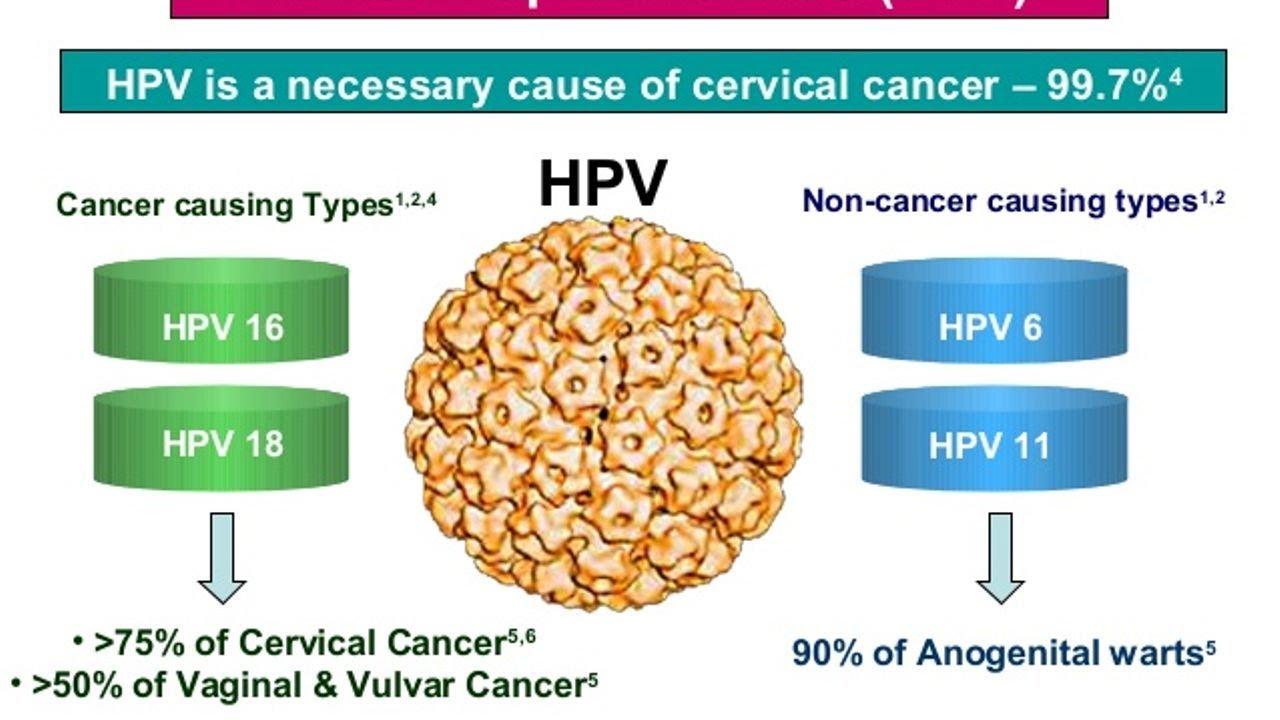 do human papillomavirus cause cancer)