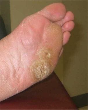 human papillomavirus symptoms male)