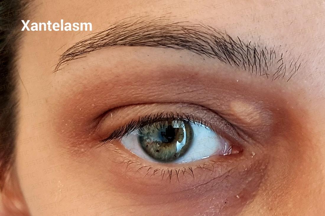 Tratament PlasmaPen Constanta - NewClinic