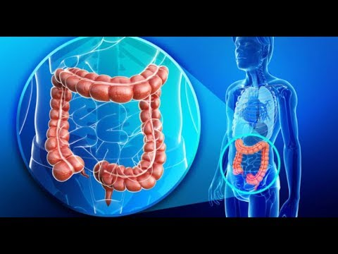 Metode de detoxifiere a colonului