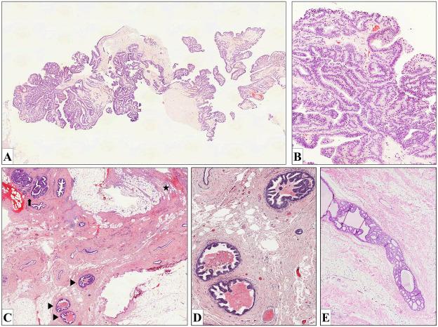 Papillary lesion without atypia - Simptome ale infecției helmintice pentru adulți