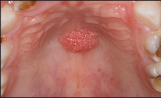 Giant cell papilloma, What causes fibroepithelial papilloma