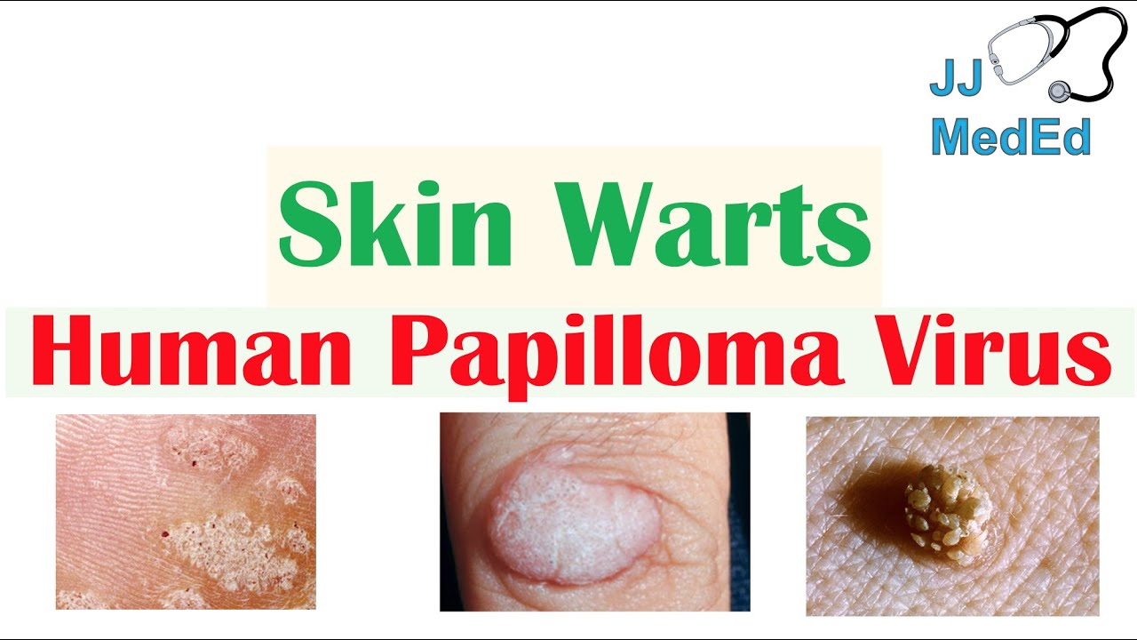 papilloma treatment warts)