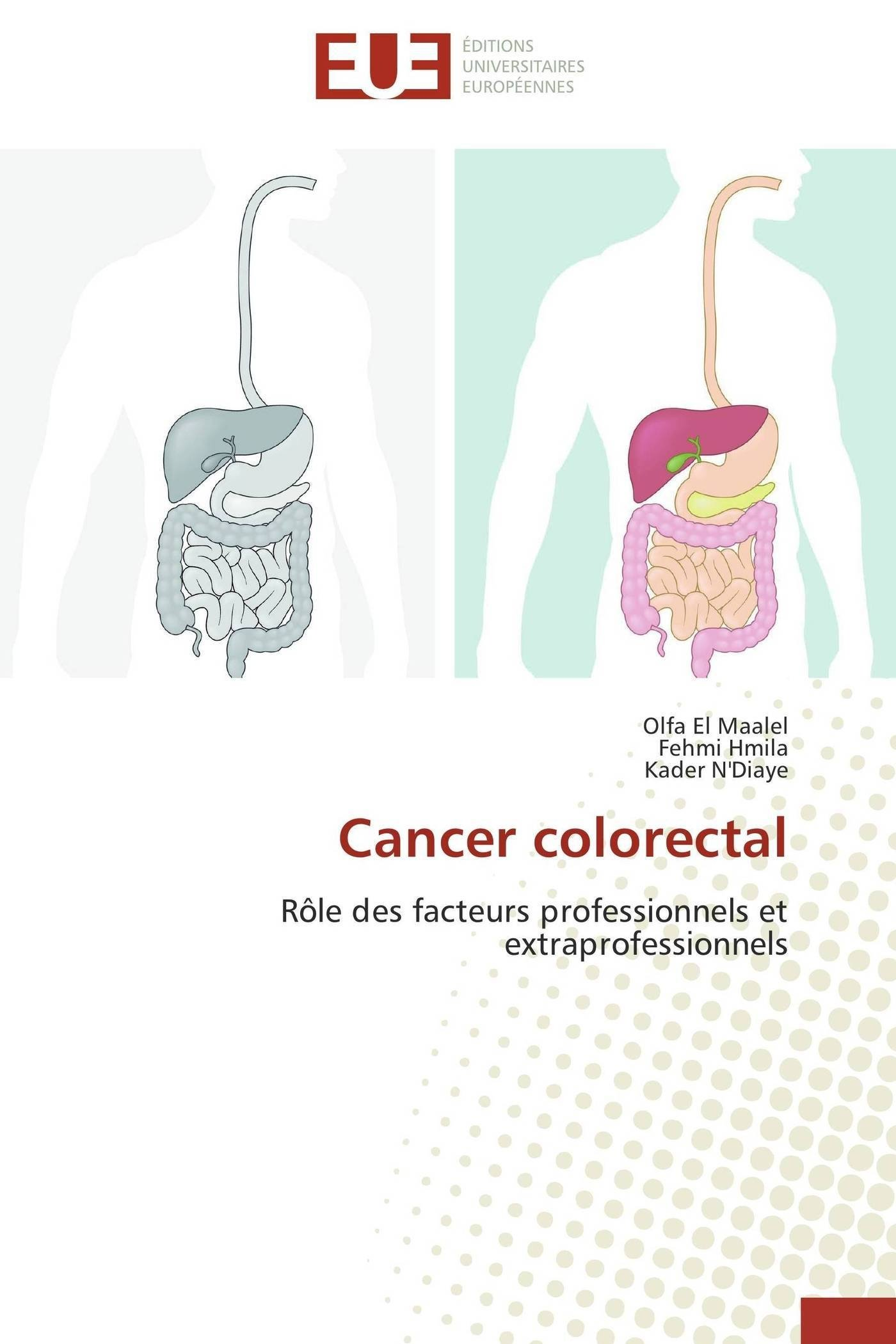 Cancer colon ganglios afectados, Síntomas del cáncer de colon cancer pulmonar simptome si tratament