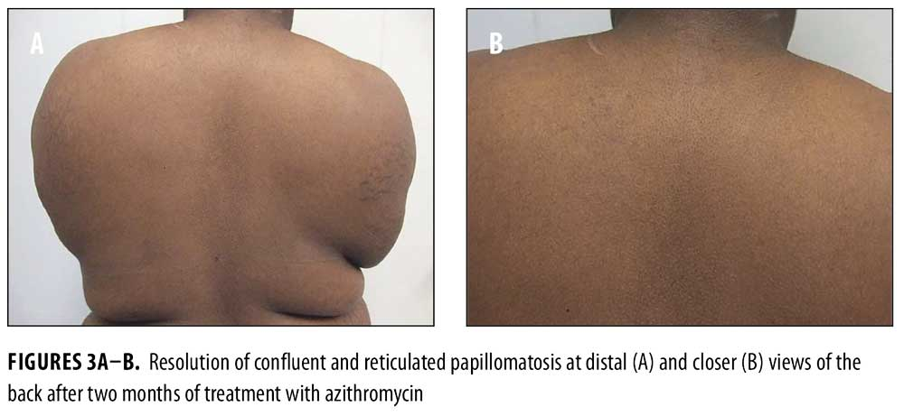Confluent and reticulated papillomatosis face