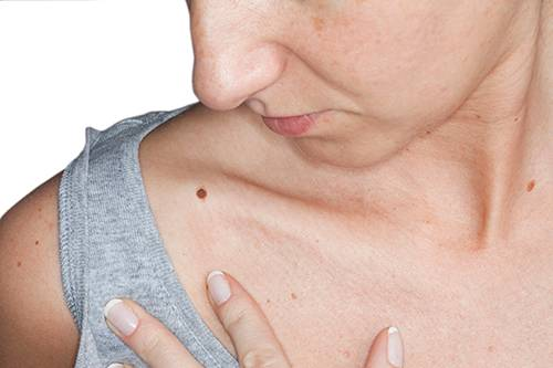 aggressive cancer in neck