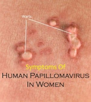 papillomavirus in females enterită la copii cu simptome