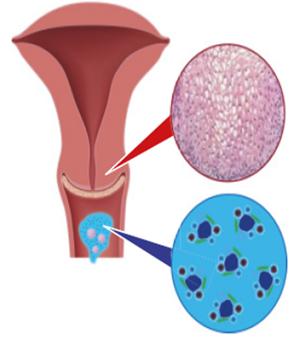 human papilloma virus kezelese